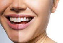 Snowhite Teeth Whitening – official website – harga – farmasi